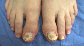 Some Of The Home Remedies For Fungal Infection