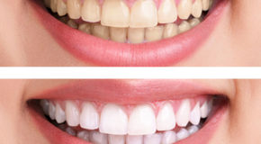Tooth whitening makes your smile beautiful
