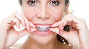Invisalign is a good treatment for teeth