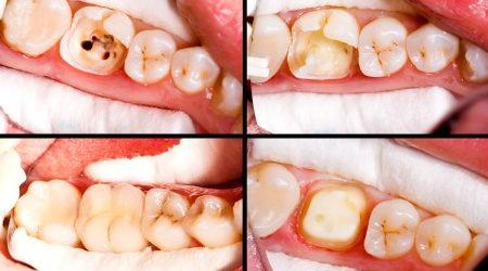What is root canal therapy all about?