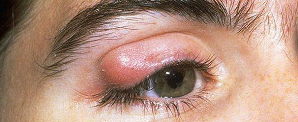 Shedding Light on 4 Frightening Eye Disorders