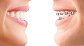 Go for invisalign for a good smile