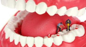 Root canal services
