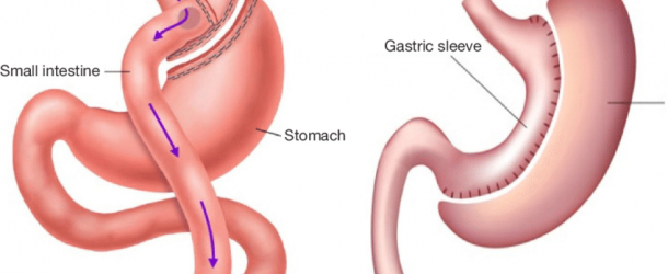 What To Know About Gastric Bypass