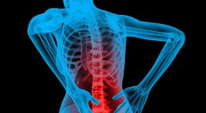 Three Tips for Managing Back Pain