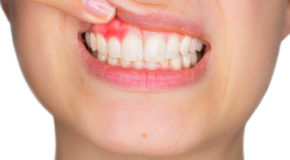 Warning Indications of Gingivitis
