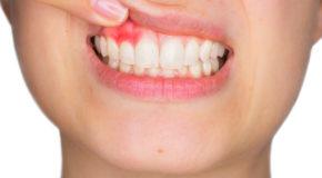 Warning Indications of Gingivitis