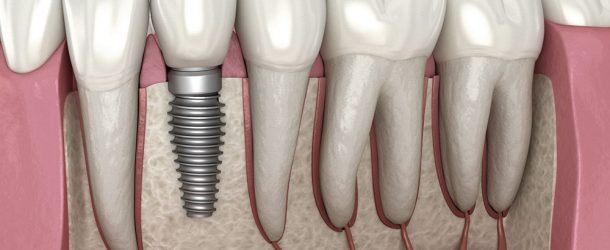 3 Things to Know About Dental Implants